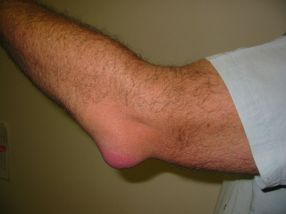 800px-Bursitis_Elbow_WC